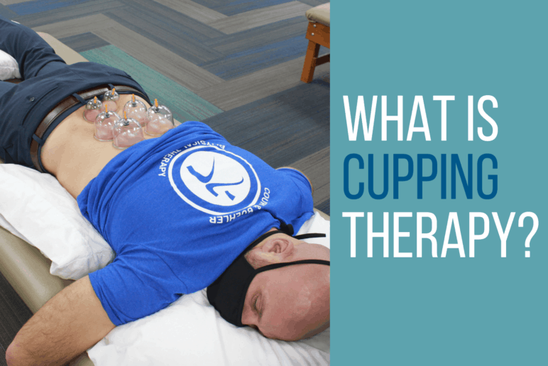 What Is Cupping Therapy (Myofascial Decompression)?